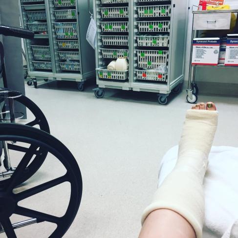 Broken Foot- November 2017