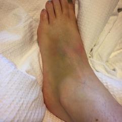 Broken Foot November 2017